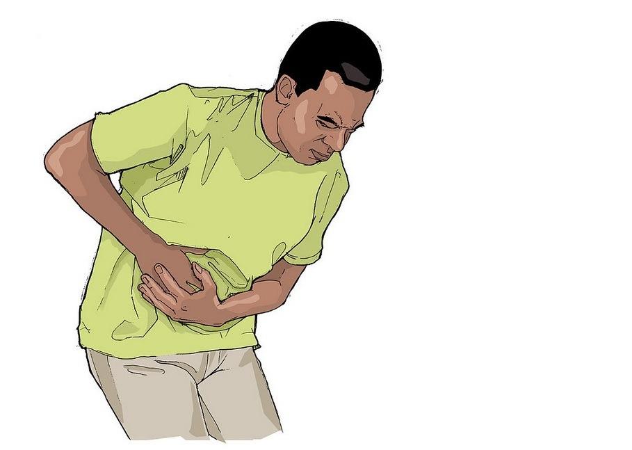 Perforation intestinale
